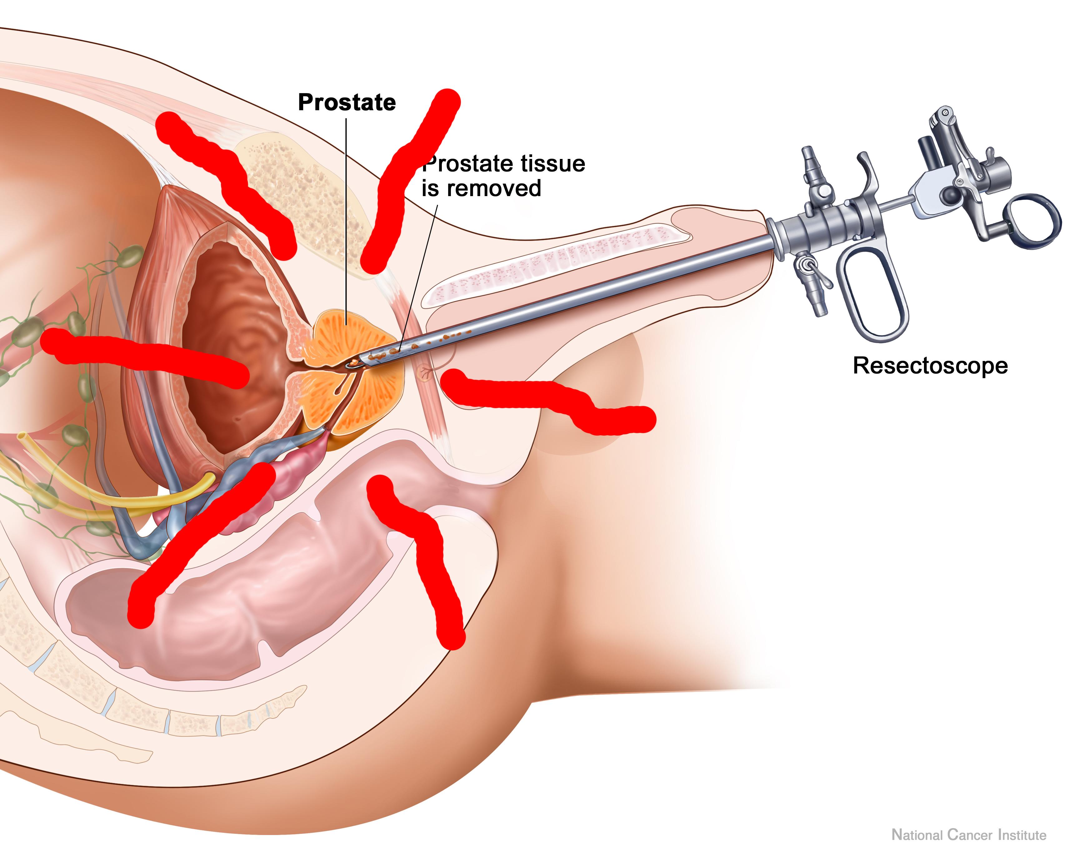 male prostate